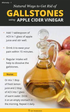 Apple Cider Vinegar Remedies for Gallstones