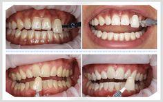 Cạo vôi răng có đau nhiều không là băn khoăn của nhiều bệnh nhân. Với máy siêu âm, thực hiện lấy cao răng rất nhẹ nhàng, không gây chảy máu và đau nhức.