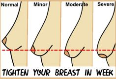 How To Tighten Your Breast in Week