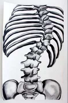 we're just naturally awesome that way... stay strong fellow scoliosis warriors!  ~<3~