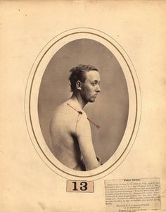 This photograph of an injured American Civil War soldier was created by Reed B. Bontecou, a New York surgeon who documented the casualties of the Civil War battlefields. Such photographs were used to. Medical Photography, War Photography, American Civil War, American History, Native American, Civil War Photos, Gettysburg, Military History, Civilization