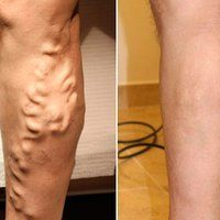 Vein Treatment Clinic provides varicose vein treatment by expert doctors.We also treat thread veins, leg pain, bulging veins and other venous conditions. Our clinics are located in New York, San Diego, New Jersey and Texas. Visit a vein clinic near you. Varicose Vein Remedy, Varicose Veins Treatment, Vicks Vaporub, Rheumatische Arthritis, Vein Removal, Sciatic Nerve, Healthy Beauty, Natural Remedies, Butt Workout