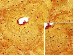 Óso: Óso compacto   Especie: rato (Mus musculus; mamíferos)  Técnica: Desgaste.