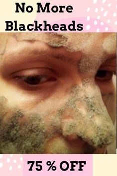 Get Rid of Blackheads with our Charcoal Blackhead Treatment. Our Blackhead Treatment Products like o Best Blackhead Mask, Best Blackhead Treatment, Blackhead Remover Homemade, Blackheads Removal Cream, Get Rid Of Blackheads, Pore Cleanser, Moisturizer With Spf, Carbonated Bubble Clay Mask, Makeup Remover