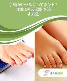 手術がいらないってホント?自然に外反母趾を治す方法 外反母趾が発症すると、歩いているときや一日中靴を履いて外出するときに生じる痛みに耐えられなくなることがよくあります。このように辛い痛みを伴う症状が発症する外反母趾ですが、手術を受けたあとも痛みに苦しんでいる人が多くいます。そのため、できる限り「自然な方法」つまり外科手術なしで外反母趾を治療する方法をおすすめします。