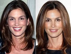 Cindy Crawford Befor And After Plastic Surgery