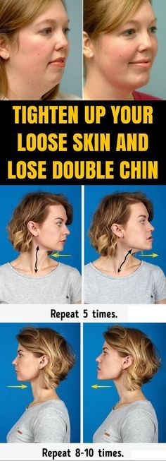 Incredible Exercises In Order To Tighten Up Your Loose Skin & Lose Double Chin!!! - Way to Steal Healthy