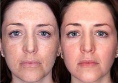 Lava tu cara con esto antes de dormir y al próximo día podría estar sin arrugas y manchas de forma rápida.