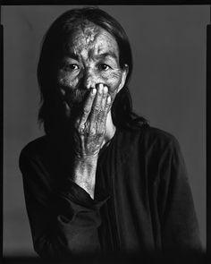 Napalm victim, Saigon, South Vietnam, April 29, 1971.  By Richard Avedon.