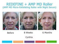 Redefine AMP MD Roller Before and After Rodan + Fields www.ericav.myrandf.com