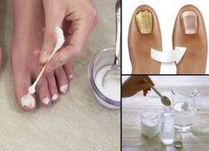 Elimina el hongo de las uñas / hongos en los pies en tiempo récord con esta sencilla receta casera. Alcohol, vinagre, agua axigenada