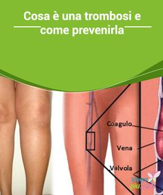 come dire che la cellulite sta guarendo