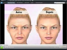 O que dá para fazer na Cirurgia Estética  Veja mais em http://www.comofazer.org/beleza-e-bem-estar/cirurgia-estetica-o-que-consegue-e-o-que-nao-consegue-remediar/