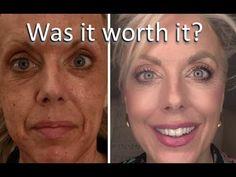 Elle Is For Living - YouTube Fractional Laser Treatment, Fractional Co2 Laser, Skin And Hair Clinic, Skin Clinic, Co2 Laser Resurfacing, Laser Surgery
