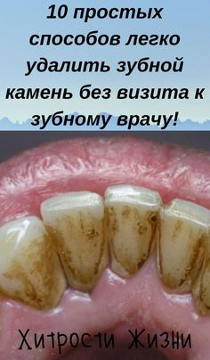Wim Hof, Home Medicine, Dentistry, Health And Beauty, Healthy Life, Health Care, Food And Drink, Health Fitness, Hair Beauty
