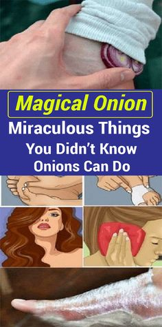 Natural Home Remedies Onions Are a Great Natural Remedy For Common Illnesses – Here Are 12 Unexpected Ways To Use Them Natural Health Tips, Natural Health Remedies, Natural Healing, Natural Oil, Natural Foods, Natural Products, Natural Cures, Natural Remedies For Cough, Natural Beauty