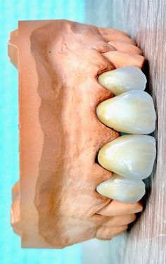 Dental Anatomy, Dental Technician, Dental Art, Dentistry, Hot Dog Buns, Ceramics, Front Teeth, Paintings, Smile