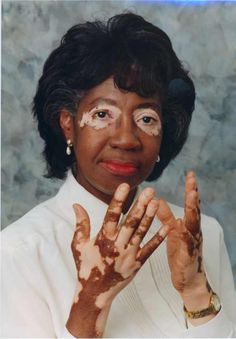 Vrai Belle (vitiligo)