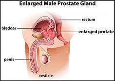 prostatite testosterone alto