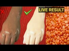 Apply masur dal on Your Skin and See Magical Result within 1 Hour । Amazing Beauty Hacks Items We Use During Shoot and Edit Camera Use Canon EOS Mark IV Skin Whitening Soap, Natural Skin Whitening, Natural Skin Care, Natural Health, Beauty Tips With Honey, Beauty Tips For Glowing Skin, Beauty Skin, Vaseline Beauty Tips, Skin Tips