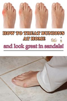 How to treat bunions at home and look great in sandals!