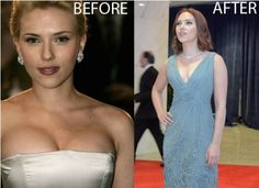 Scarlett Johansson breast reduction - Report. She appears to have done just the opposite, she had a breast reduction to make her breasts smaller.