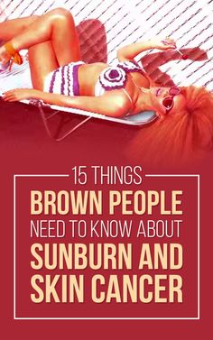 Here's What People Of Color Need To Know About Sunburn And Skin Cancer