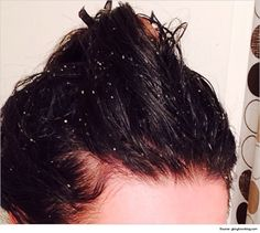 dry scalp or dandruff treatment and causes