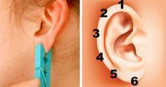 The origins of the ear reflexology can be traced back to the popular ancient Chinese acupuncture methodologies, or even earlier, to the Egyptian practices.Even though you may be a bit skeptical the first time you hear about Ear Reflexology, Fitness Workouts, Sensory System, Acupuncture For Weight Loss, Ear Parts, Body Organs, Health Remedies, Back Pain, Healthy Tips