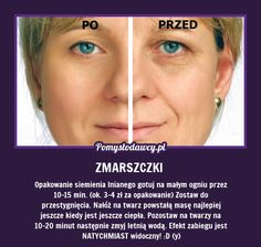 NIEZWYKŁY TRIK NA ZMARSZCZKI MIMICZNE! Beauty Care, Diy Beauty, Beauty Habits, Les Rides, Face Massage, Biologique, Natural Cosmetics, Good Advice, Face Care
