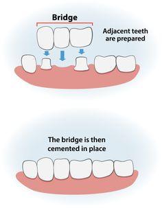 Exclusive Dental Bridge Benefits Of Teeth Implants, Dental Implants, Oral Health, Dental Health, Tooth Bridge, Dental Bridge Cost, Teeth Whitening That Works, Restorative Dentistry, Dental Laboratory