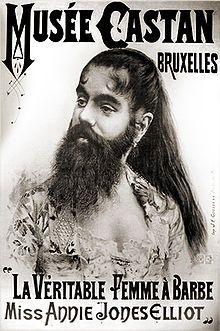 Bearded lady - Wikipedia, the free encyclopedia