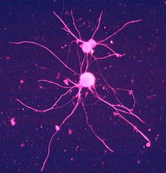 Stained Neuron