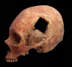 """Inca skull with signs of trepanation.  Kinda reminds me of that line in the movie Ghostbusters: """"Egon, this reminds me of the time you tried to drill a hole in your head."""" """"That would have worked if you hadn't stopped me."""""""