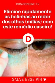How to remove milium from your face at home - safe, easy and without scarring - Milia usually appears around your eyes, eyelids, and cheeks, but they can appear anywhere on your b - Short Fine Hair Cuts, Short Hairstyles Fine, Diy Beauty, Beauty Skin, Beauty Hacks, Beauty Care, Crawling In My Skin, Smart Women, Body Motivation