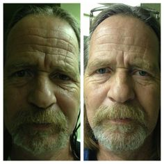 Nerium takes 8-10 years off your skin!  Don't you want to look younger?  www.lisacraig.nerium.com
