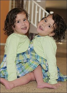 Conjoined twins Emma and Taylor Bailey shared one heart and one liver. They died at age 3 in 2010 during a preparatory cardiac surgery prior to separation. Conjoined Twins, Human Oddities, Double Header, Double Life, One 7, Sweet Lady, Young Life, Medical History, Medical Conditions