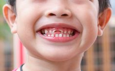 Two in three children aged 12 are now found to be free of visible dental decay