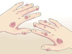 How+to+Cure+Trigger+Finger+--+via+wikiHow.com