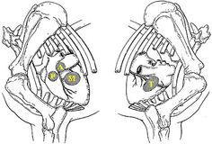 Intraosseous catheters can be placed in birds in either