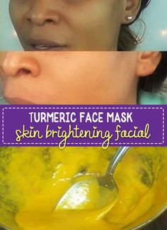 Turmeric Face Mask to Lighten Skin - brighten your skin in 15 minutes, great for removing scars and blemishes. Super easy to make and you can have bright, glowing skin in minutes. Turmeric Facial Mask, Tumeric For Acne, Lighten Skin, Skin Brightening, Acne Scars, Face Masks, Lip Mask, Hormonal Acne, Skin Care