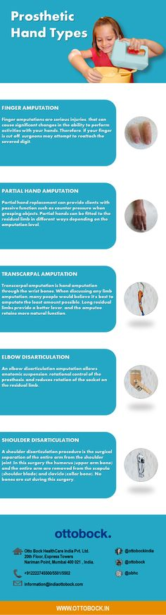 Hand amputations can be of various types,This infographic enlists some of the hand prosthetics available for hand, partial hand, elbow, finger, transcarpal and shoulder.