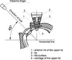 unique transpalpebral tonometer DIATON Pen - IOP via Eyelid and Sclera http://www.TonometerDiaton.com #tonometer #diaton