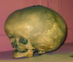 alien skull is not alien but real defect