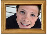 Welcome to Bronsky Orthodontics ‰ŰŇ A progressive center for orthodontics and Orthodontist in FIDI NYC Park Avenue, UES, Upper East Side, New York City and Upper East Side, Park Avenue, Orthodontics, Braces, New York City, Las Vegas, Nyc, New York, Last Vegas