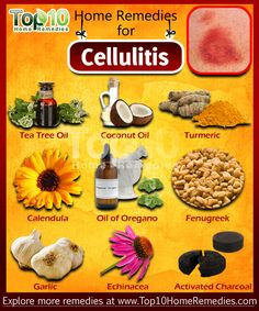 Cellulitis is most often caused by staphylococcus and streptococcus bacteria, but can also be caused by other types of bacteria. It occurs in areas where the skin has broken open such as an insect bite or where skin is breaking down from conditions like eczema,etc. Generally, bacteria are present on the skin, but they do not cause harm unless they are able to go deep into the skin. Obesity & blood circulation problems increase the risk of developing cellulitis.