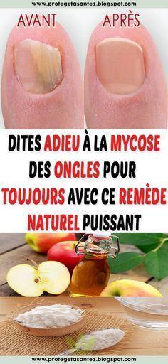 Say goodbye to nail fungus forever with this powerful natural remedy. Nail Fungus, Natural Cures, Short Nails, Perfect Body, Fungi, Beauty Care, Nail Care, Decir No, The Cure