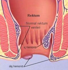 http://ilacsaglik.com/hemoroid-kremi-fitili-ve-basur-tedavisi-ilaclari/