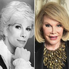 Joan Rivers Plastic Surgery New Book Reveals The Surprising Reason Why She Excessively Went Under