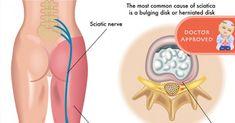 Como acabar rapidamente com a dor do nervo ciático | Cura pela Natureza